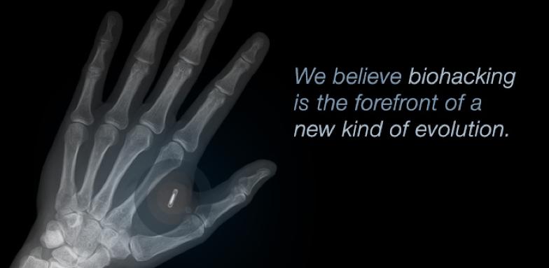 手背植入NFC标签,只为把比特币放在一个安全的地方